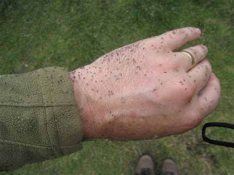 View topic - Insect repellant • Walkhighlands