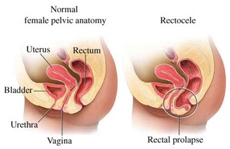 Rectocele: Yet Another Reason to Do your Kegels   Angie's
