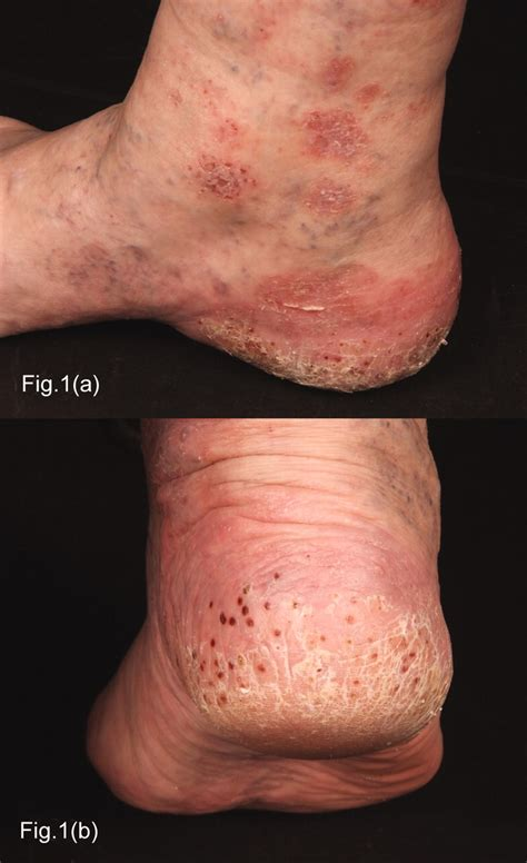 Atypical Psoriasis Following Rituximab for Rheumatoid